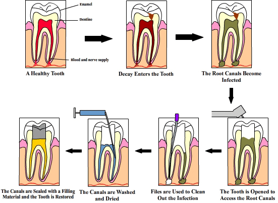 Root Canal Therapy Diagram