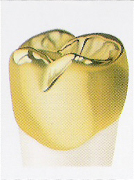 Full Cast Alloy / Gold Crown