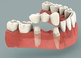 Southdown Dental has dental bridge and restorative solutions for you.